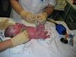 Ošetření předčasně narozeného miminka na novorozenecké resuscitační jednotce