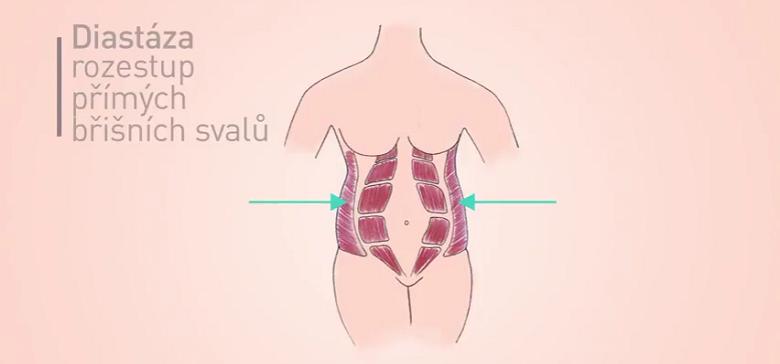Obrázek znázorňuje diastázu přímých břišních svalů, šipkou jsou označeny šikmé břišní svaly, které budeme cvičit. Jejich zpevnění přitáhne přímé břišní svaly k sobě.
