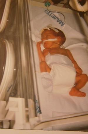 Příběh předčasně narozené Nicole