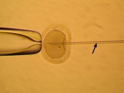 Průnik spermie do vajíčka